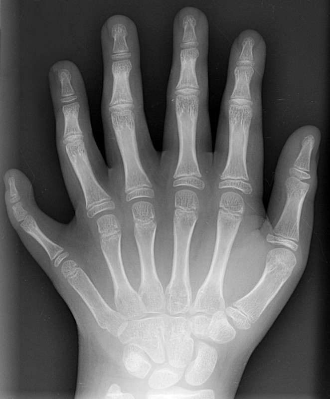 Polydactyly_01_Lhand_AP.jpg